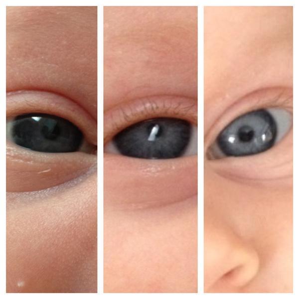 رنگ چشم نوزاد چه زمانی ثابت می گردد؟